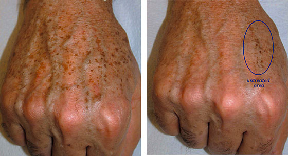 Pigmented Lesion Post Treatment Guidelines Christopher