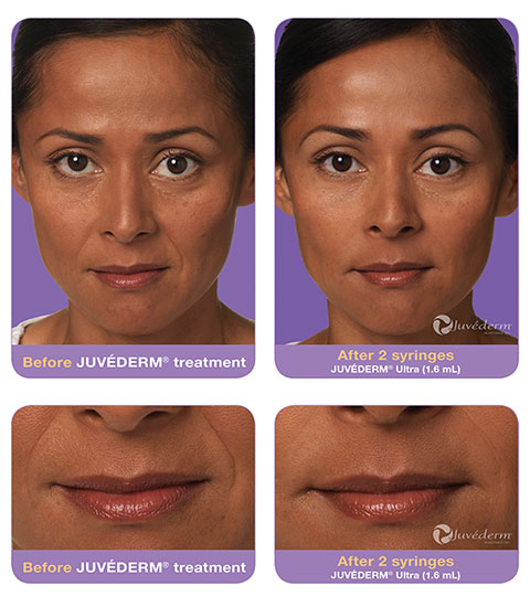 juvederm_jill_sample