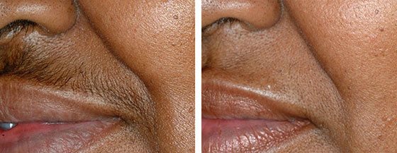 laser_hair_removal_1