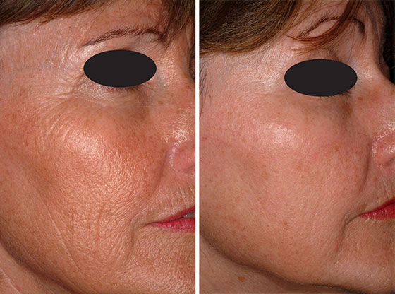 Ablative ablative facial non rejuvenation